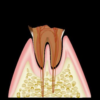 real-teeth005.png