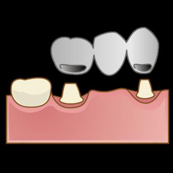crown015.png