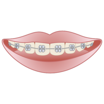 orthodontics003.png